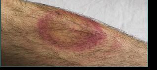 Erythème - maladie de Lyme