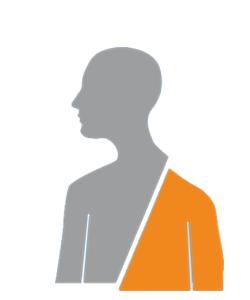 Une faiblesse du côté du corps, bras ou jambe en cas d'AVC