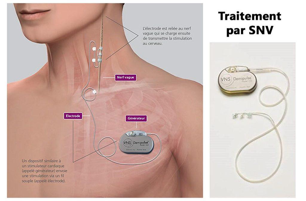 Schéma représentant le traitement de l'épilepsie par stimulation du nerf vague
