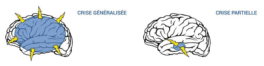 Schémas de cerveaux représentant les deux types de crises d'épilepsie ; cette dernière est une pathologie prise en charge en neurophysiologie.
