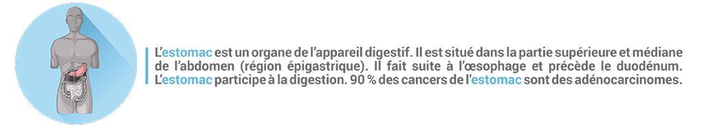Bandeau explicatif du cancer de l'estomac et de sa localisation dans l'abdomen.