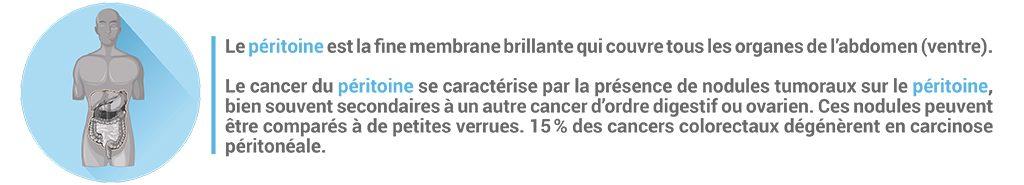 Bandeau explicatif du cancer du péritoine et de sa localisation dans l'abdomen.