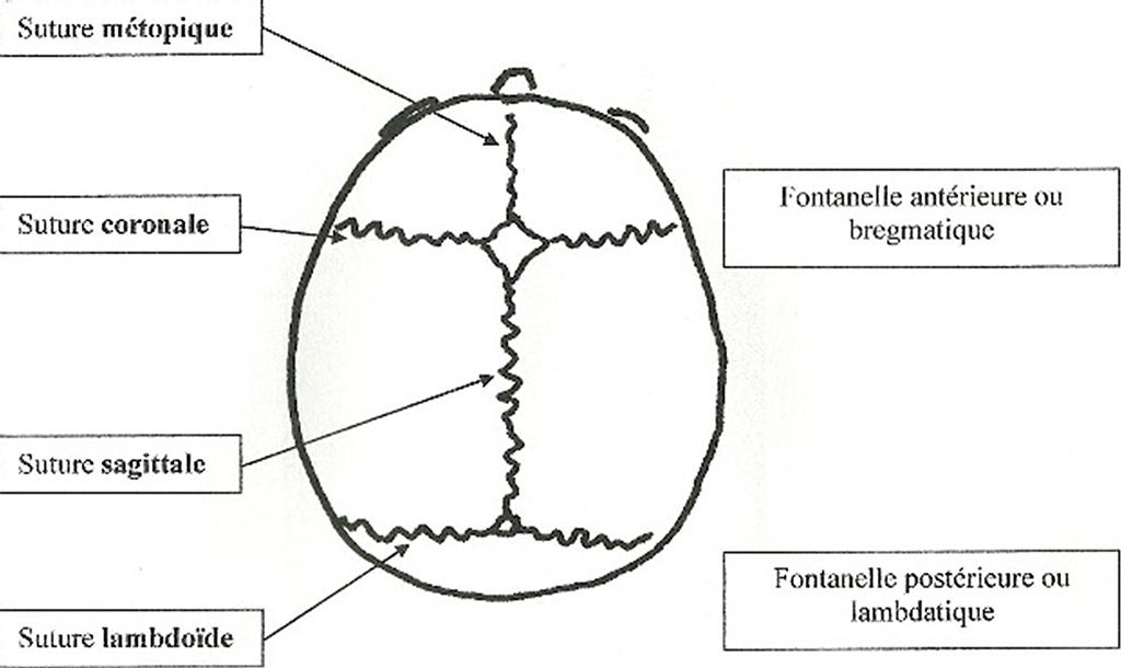 Schéma des sutures du crâne dans le cadre d'une craniosténose.