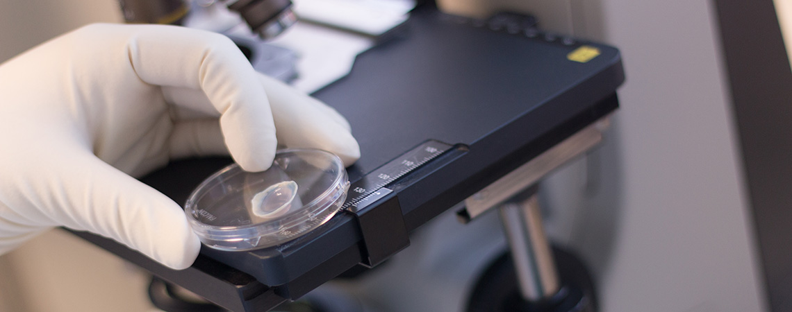 Une cornée est examinée au microscope à la banque de cornée du CHU de Rouen.